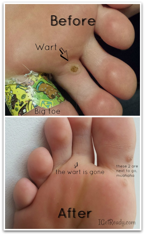 wart before after, wart remover that works, all natural wart remover